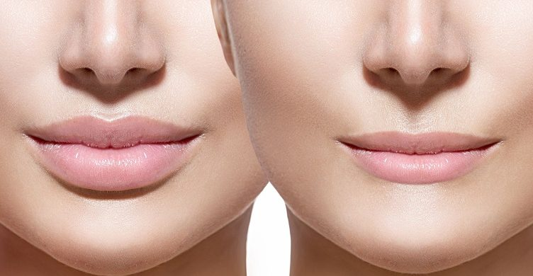 How to get smaller lips